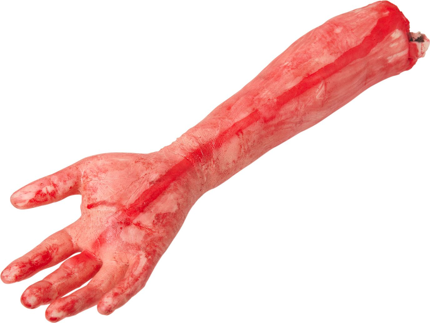 Afgesneden arm